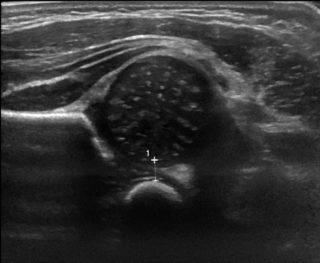 Echographie de hanche du nouveau-né