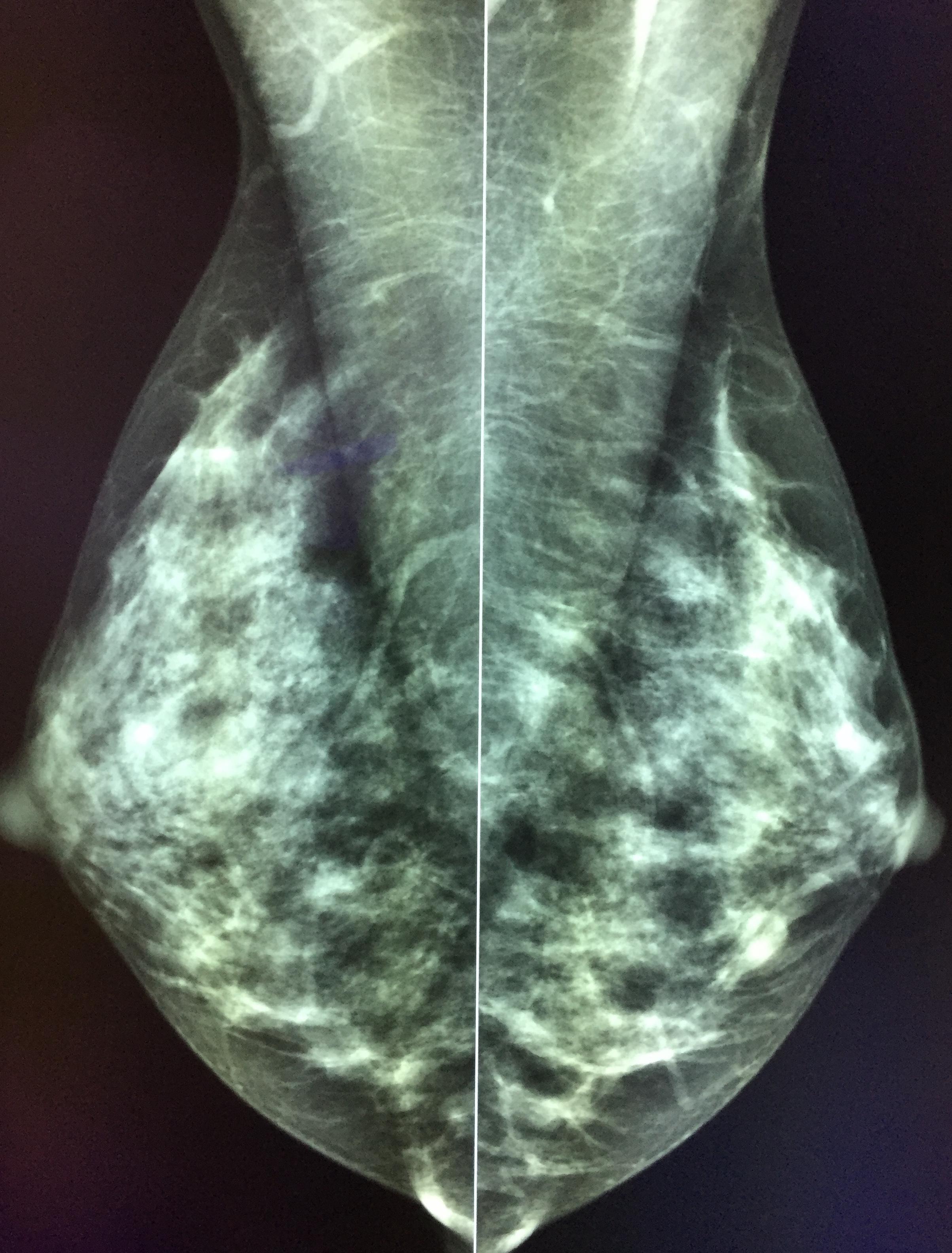 Mammographie numérique